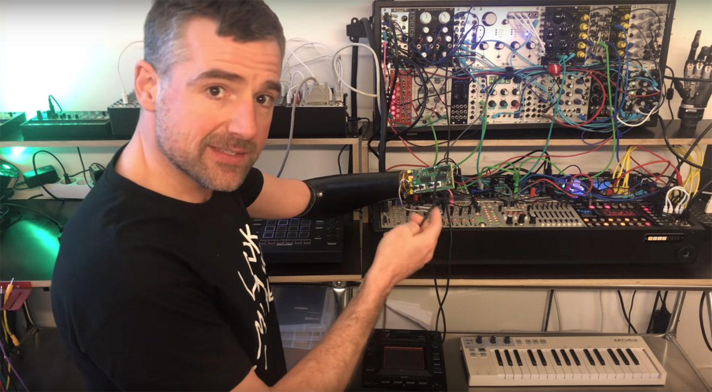 SynLimb: Synthesizer per Gedanken steuern mit der CV-Handprothese